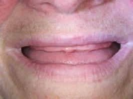 Zahnlos im Oberkiefer Zahnimplantate, Unterkiefer Praxis Dr. Ayna