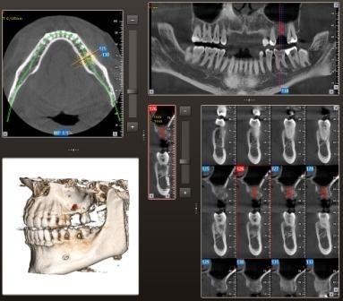 Implantatplanung