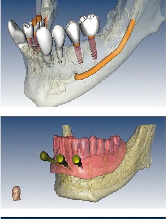 Dentale Implantologie und Parodontologie Zahnarztpraxis Dr. Ayna