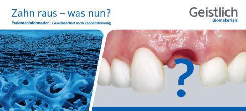 Zahn raus Knochenaufbau Dr. Ayna