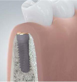 Zahnimplantat Knochenaufbau Dr. Ayna at Camlog