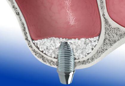 Kireferhöhle Sinuslift Knochenaufbau Zahnimplantat Duisburg