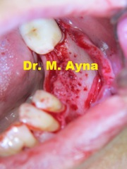 Knochenaufbau Knochenblockvorbereitung Zahnimplantate Dr. Ayna