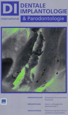 Zeitschrift Dentale Implantologie Dr. Ayna Duisburg