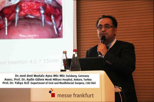 Deutscher Zahnärztetag 2015 Dr. Ayna Zahnimplantate Duisburg All on 4 Sofortbelastung