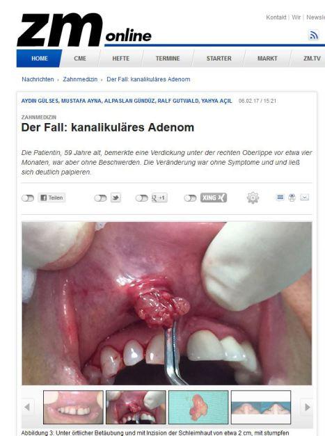 zm online Artikel über gutartigen Tumor an der oberen Lippe