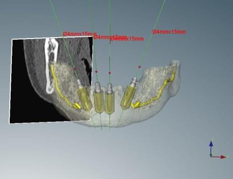 Computerplanung Zahnarztpraxis Dr. Ayna